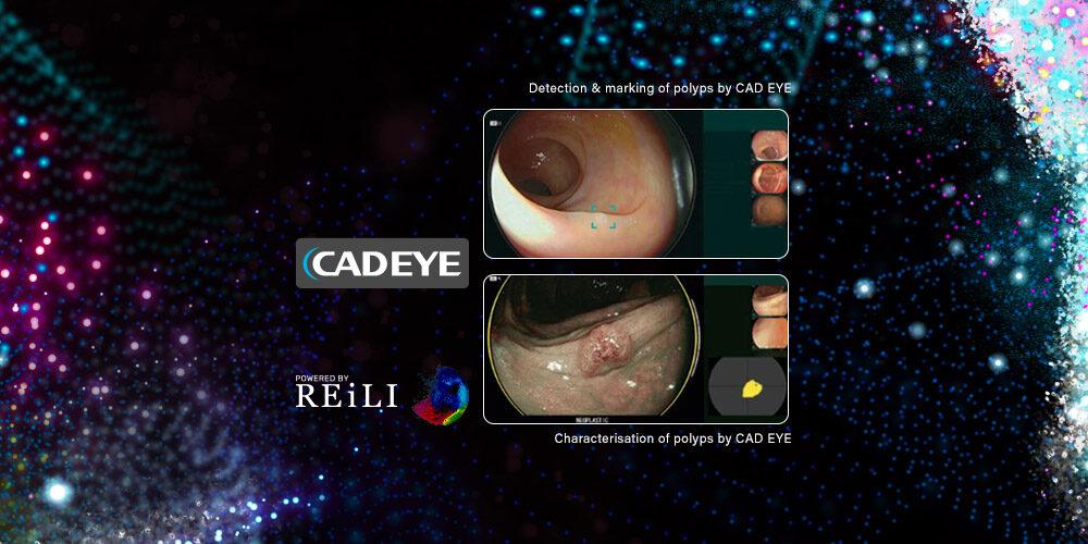 Sztuczna inteligencja w endoskopii